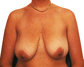 Breast Uplift Sydney - Before Surgery