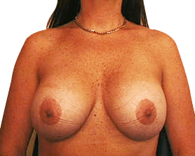 Breast Uplift Double Bay - After Surgery