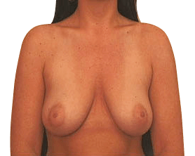 Before Breast Uplift Surgery Sydney