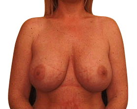 After Breast Uplift Surgery Sydney